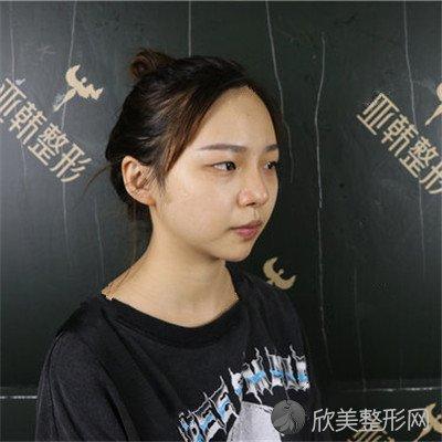 北京圣嘉新医疗美容医院口碑好吗?医院案例|项目价格表最新