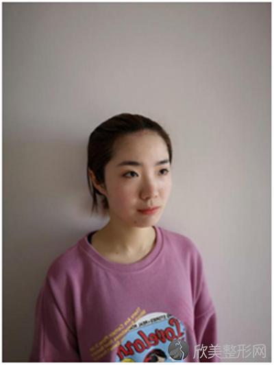 北京圣嘉新医疗美容医院靠谱吗?附案例|价格表一览