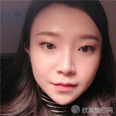 北京圣嘉新医疗美容医院正规吗?医院案例 项目价格表最新