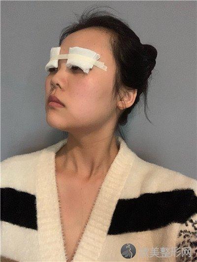 北京圣嘉新医疗美容医院怎么样?医院案例 项目价格表最新