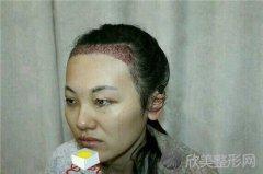 北京美憬医疗美容诊所技术如何?附案例|价格表一览