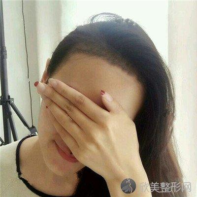 北京美憬医疗美容诊所技术如何?附案例 价格表一览