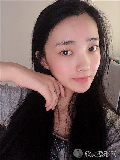 北京美憬医疗美容诊所正规吗?附案例 全新价格表