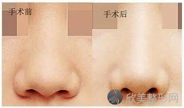 北京米扬丽格医疗美容怎么样?专家介绍_2021年全新价格表