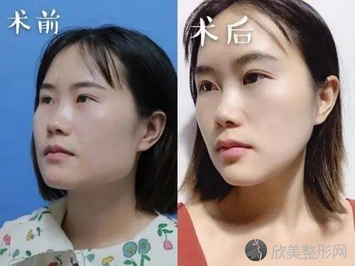 北京圣嘉荣医疗美容医院怎么样?2021年收费标准公布