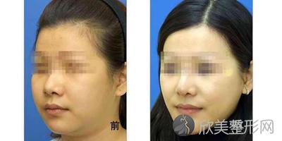 杭州港丽医疗美容诊所怎么样?2021年全新价格表出炉