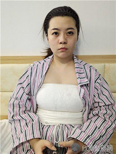 北京惠美整形美容医院靠谱吗?医院案例|项目价格表最新