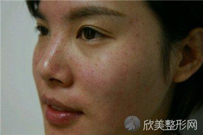 北京西美斯医疗美容诊所靠谱吗?附案例|价格表一览