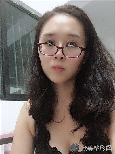 北京西美斯医疗美容诊所好不好?附案例 全新价格表