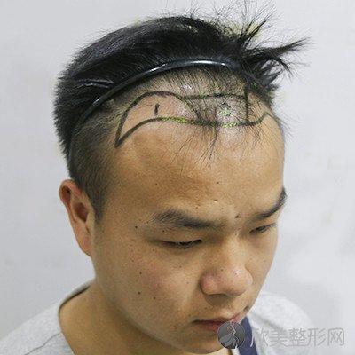 北京碧莲盛医疗美容门诊部口碑好吗?医院案例 项目价格表最新