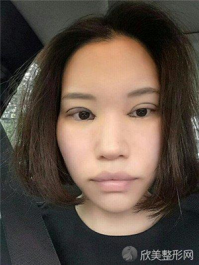 北京碧莲盛医疗美容门诊部技术好吗?附案例|全新价格表