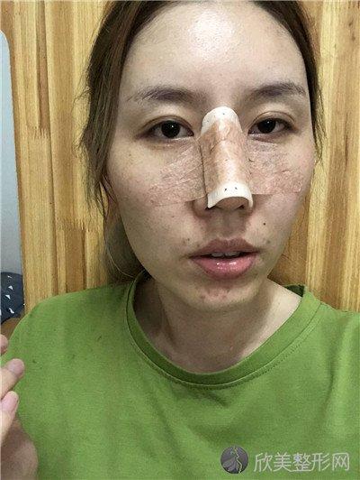 北京碧莲盛医疗美容门诊部正规吗?附案例 价格表一览