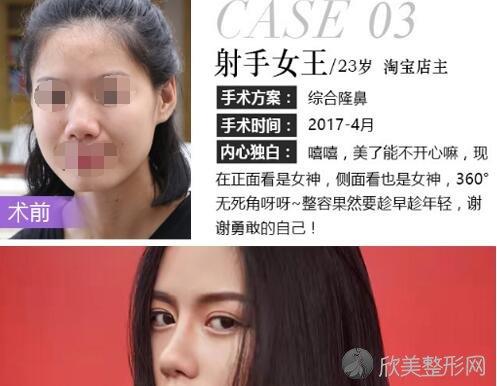 深圳哪家整形医院最好_米兰柏羽怎么样_附2021年价格表