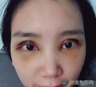 成都西区邓东伟做双眼皮怎么样_案例反馈_收费标准