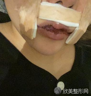 北京协和医院整形科兔唇修复靠谱吗_案例_收费标准