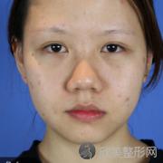 上海九院隆鼻术后三个月真实反馈_2021价格表更新