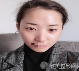 上海哪个医生做眼修复最好_柴云怎么样_附2021价格表
