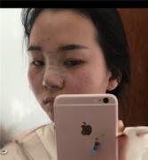 北京新星靓医疗美容医院靠谱吗?附案例|价格表一览