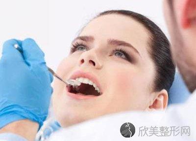 补牙需要多长时间?
