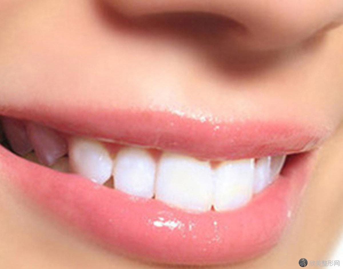 关于那些要了解的补牙知识!