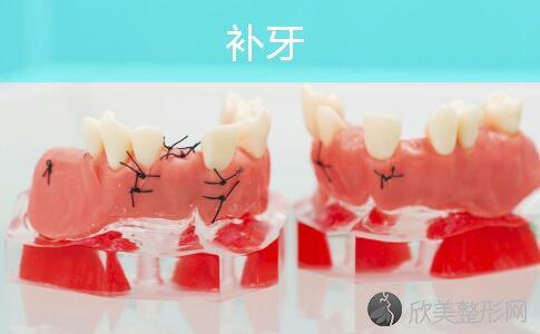 补牙后牙齿又疼了,怎么办?