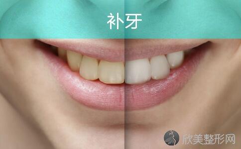 牙齿有洞应及时补牙!