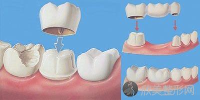 牙嵌体和补牙、牙冠有什么区别?