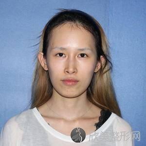 八大处王太玲做眼睛案例?眼综合顾客术后反馈案例_收费标准