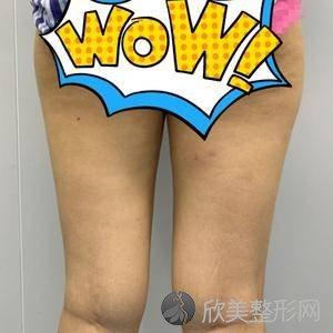 八大处杨明勇去眼袋怎么样?瘦大腿术后三个月真实野生反馈