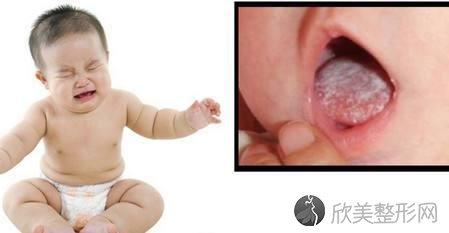 最全的宝宝口腔问题及解决办法,当妈的越早知道越好!