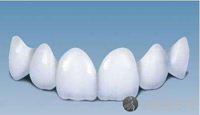 烤瓷牙的危害有哪些,烤瓷牙的寿命是多久?