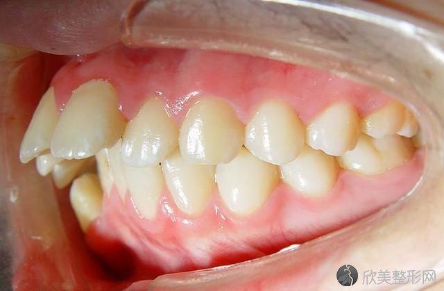 牙长得不齐和什么有关?
