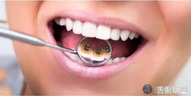 牙齿不齐不好看是小事,这3种危害更恐怖!