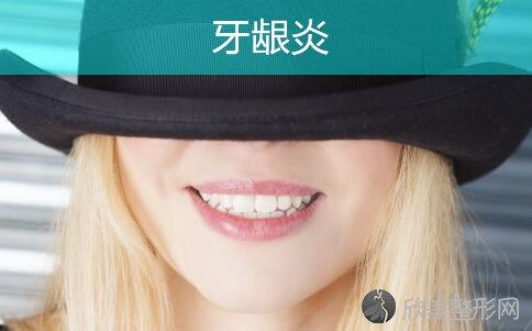 过度的讲究口腔卫生更容易得牙龈炎!
