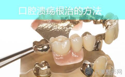 口腔溃疡能根治吗,哪些疗法根除口腔溃疡?