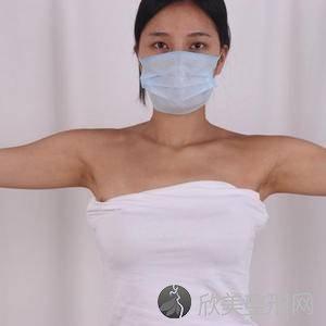 八大处整形外科医院金骥怎么样?瘦手臂顾客反馈对比图
