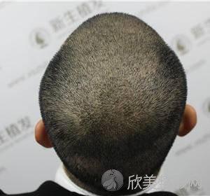 八大处整形外科医院李川怎么样?毛发种植附收费标准