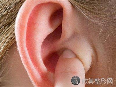 耳廓畸形图片,耳廓畸形能治疗吗?