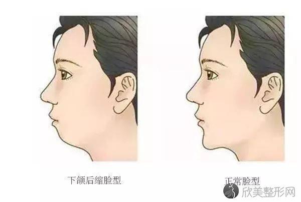你的牙齿是否属于这几种情况?