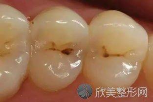 关于蛀牙的一些问题!