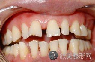 孩子牙齿参差不齐,可能是这些原因导致的,家长的干预很重要!