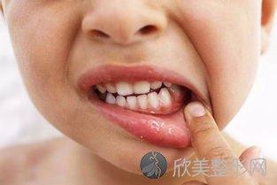 牙痛无非是这几种病因,对症治疗能摆脱!