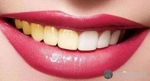 可以让牙齿快速美白有什么方法?