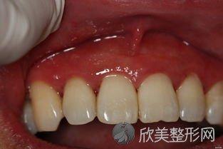 牙周炎有哪些护理措施?