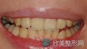 牙齿黄了有哪些方法可以变白?
