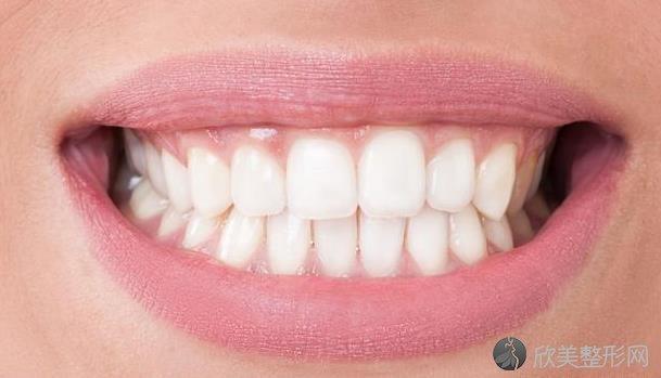 早期牙周炎的几个症状,不要不当回事!