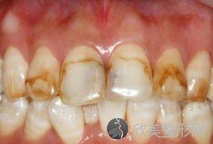 牙黄牙疼是因为常喝的水有问题?