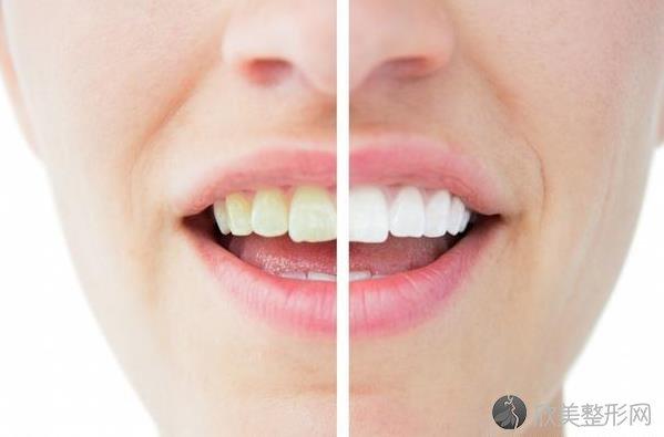 牙齿真的是越白越好吗?美白牙齿万万不能犯这5个错!