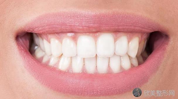 总感觉牙酸是怎么回事?可能是这5种疾病引起的!
