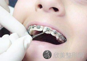 牙齿松动了?可能是这些原因造成的!